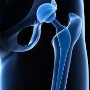 depuy hip implant lawsuit