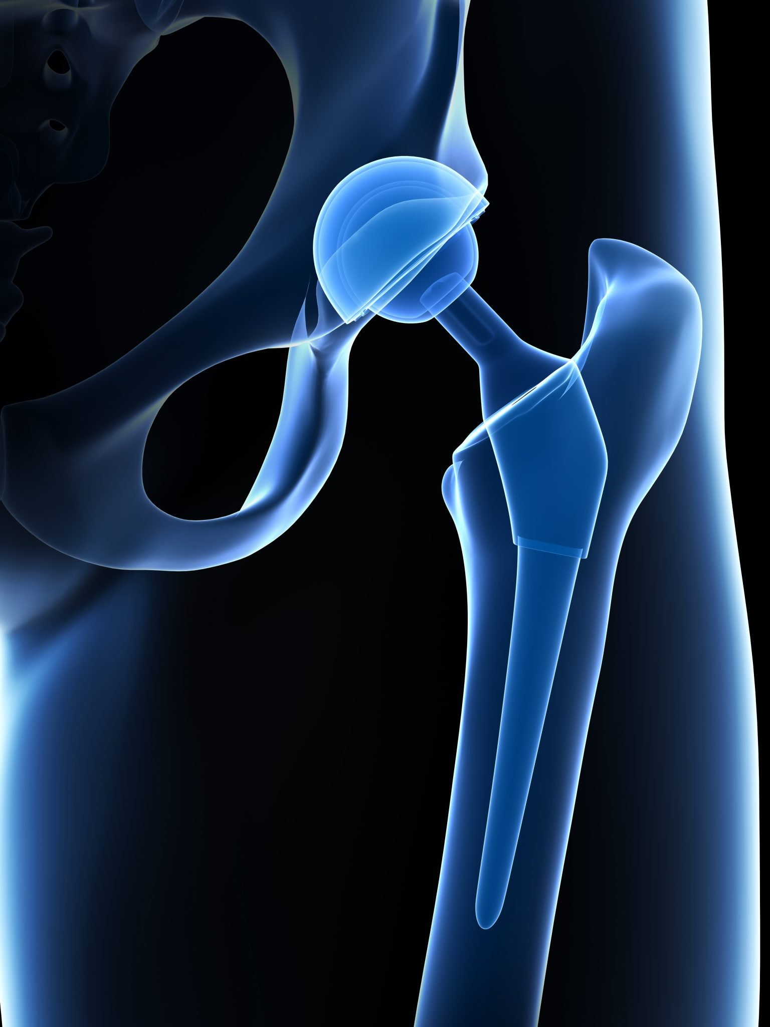 depuy hip implant lawsuit