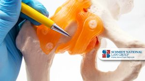 Hip & Knee Replacements Lawsuits and Claims Schmidt National Law Group 2