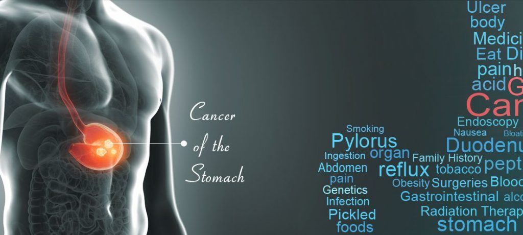 Ppi Stomach Cancer Lawsuit ⋆ Schmidt National Law Group