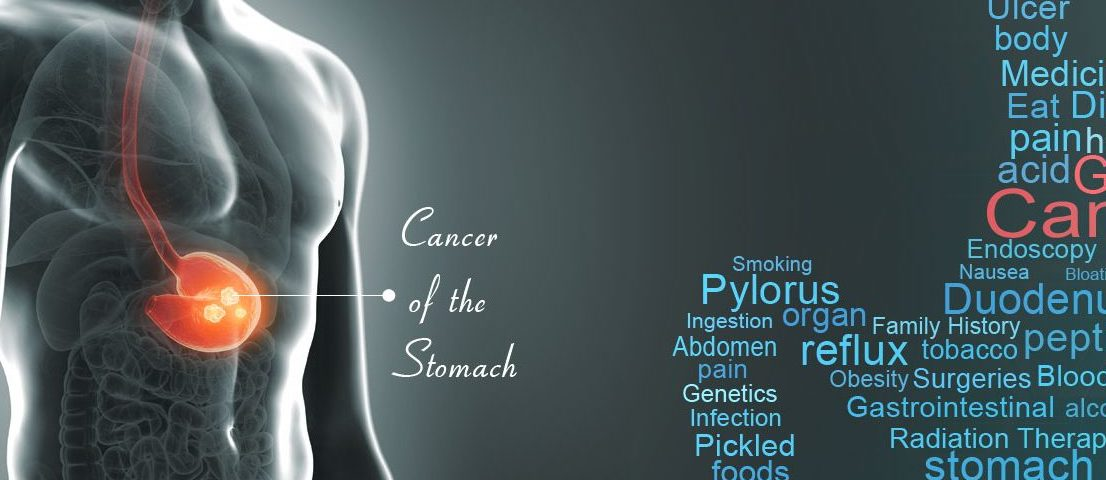 PPI Stomach Cancer Lawsuit | Schmidt National Law Group