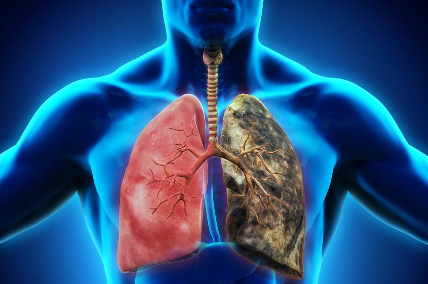 Vaping causes popcorn lung?