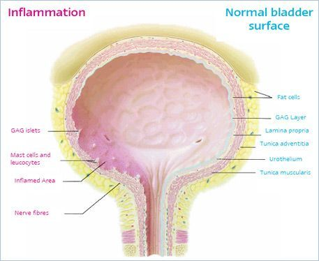 bladder inflammation diagram